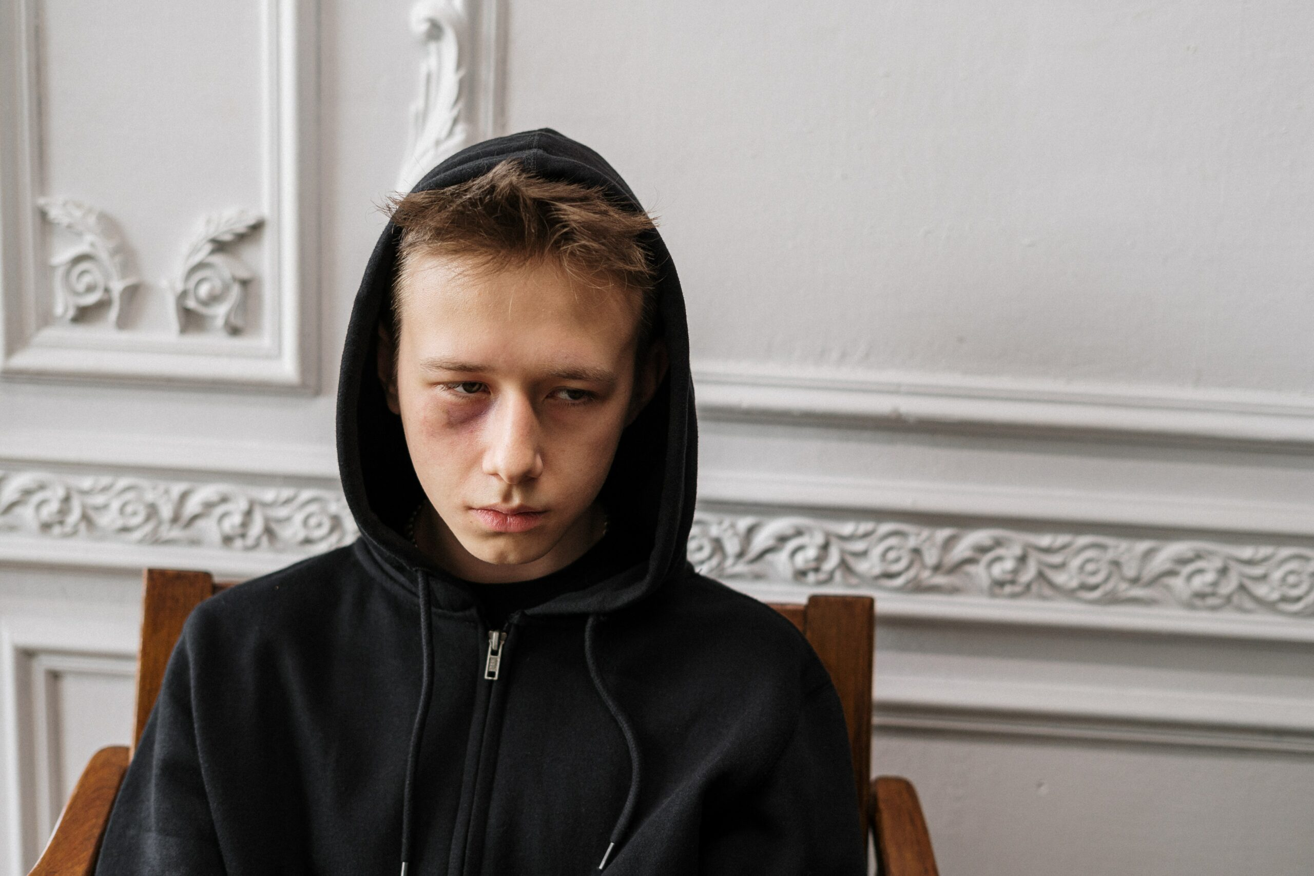 a kid with bruises near his eye